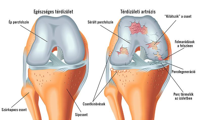 fájdalmas artrózis a térd