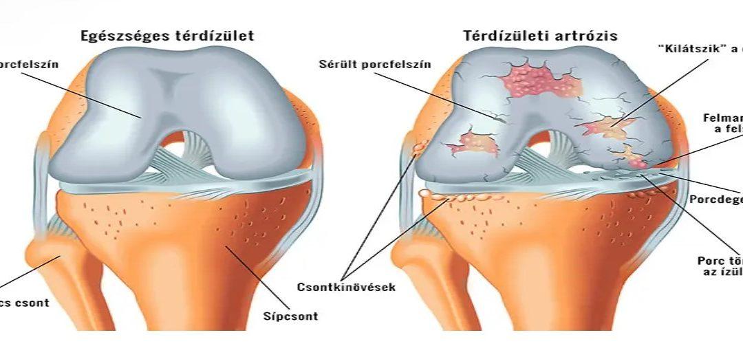 fáj a térd felülete
