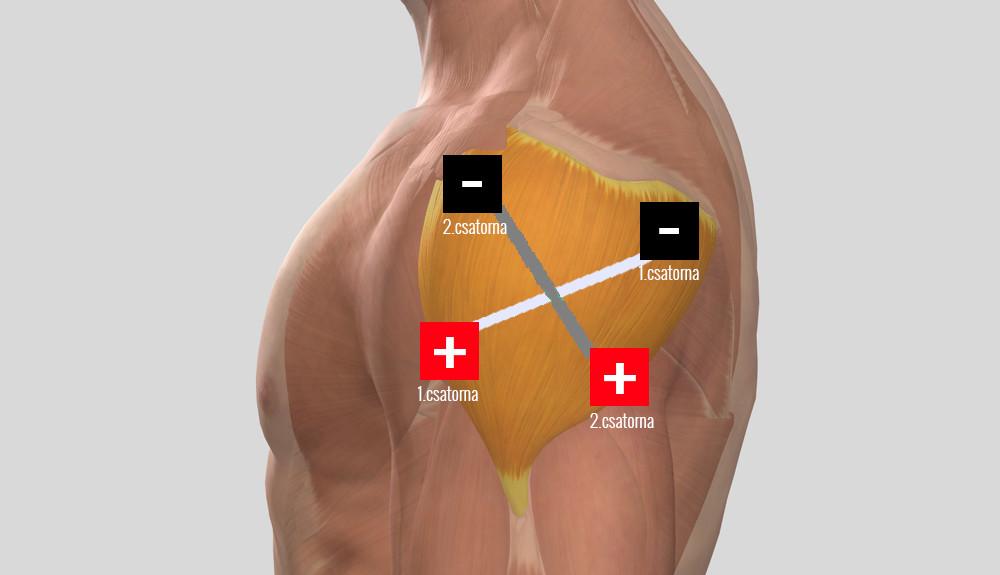 bal vállízület periarthritis kezelése)