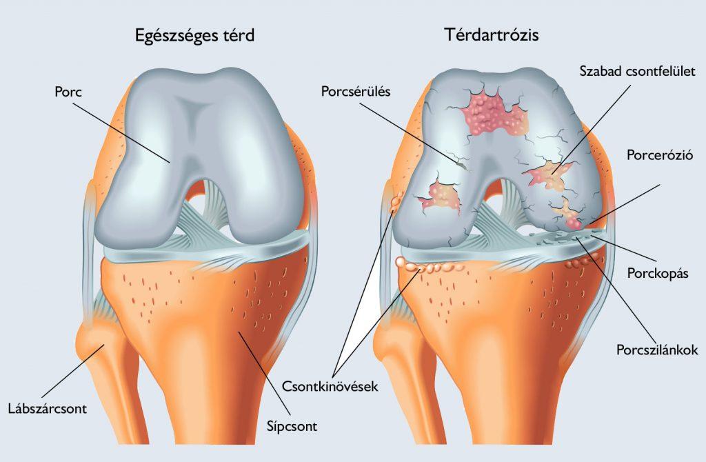 térdízületi gyulladásos kezelés 1 fokos)