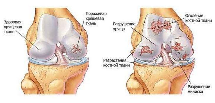 ízületi gyulladás teraflex)