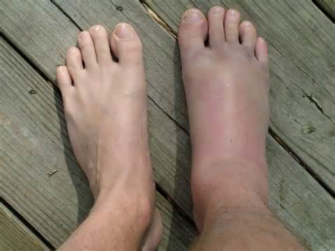 a lábak fájnak a pikkelysömörtől vörös pikkelyes folt a nyakon