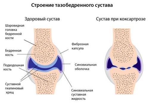 a csípőízület deformáló artrózisa 1. fokozatú tünetei