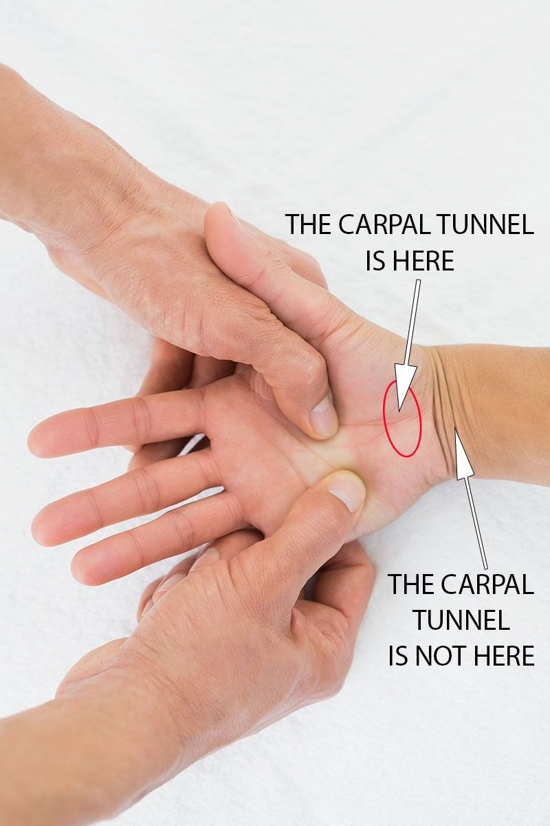 Carpalis alagút szindróma