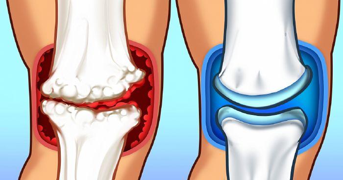 milyen vitaminokat vegyen a térdízület ízületi gyulladása esetén