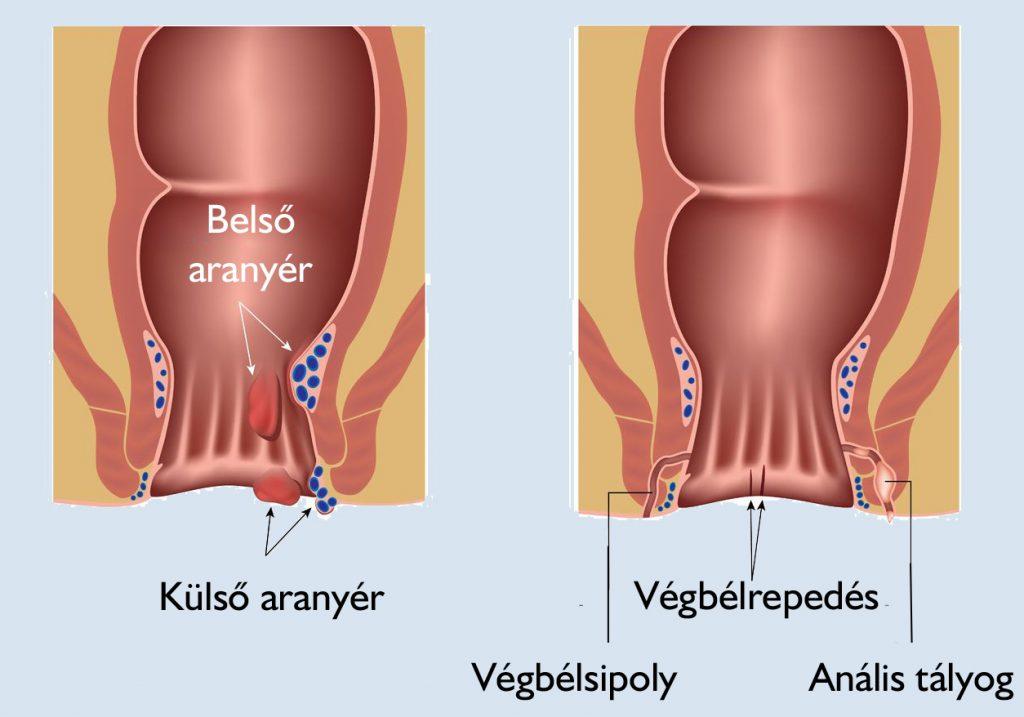 ízületi fájdalom pajzsmirigy kezelése)