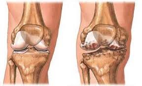 gennyes térd artrózis