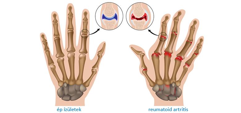 artritisz artrózisának kezelésére szolgáló módszerek