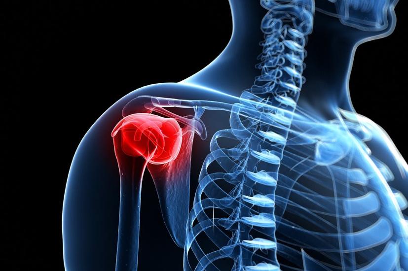 a csípő- és a vállízületek fájdalma okoz