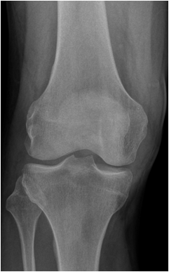 térd osteoporosis)