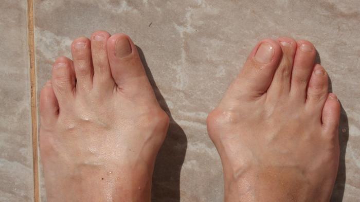 enyhítse a lábujj ízületének fájdalmát)
