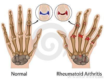 a csontok és a kéz ízületeinek károsodása)