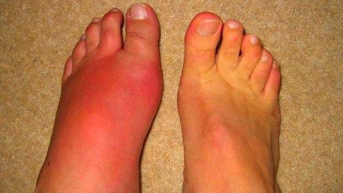 hol kezelhető köszvényes izületi gyulladás fájdalmas artrózis a térd