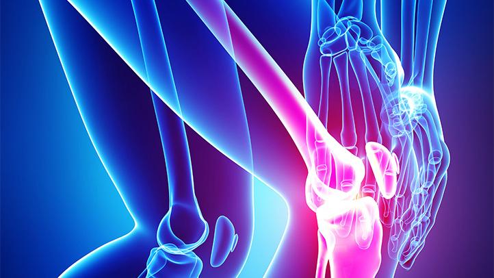 gyógynövény készítmények a csípőízület artrózisához)