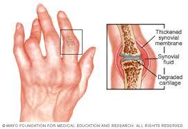 a láb kicsi ízületeinek ízületi ízületi gyulladása