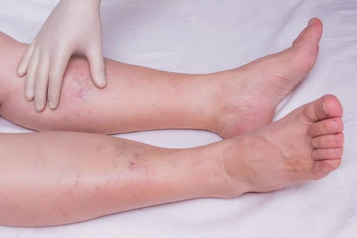 a lábak kis ízületeinek kezelése
