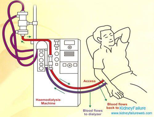 hemodialízis ízületi fájdalom
