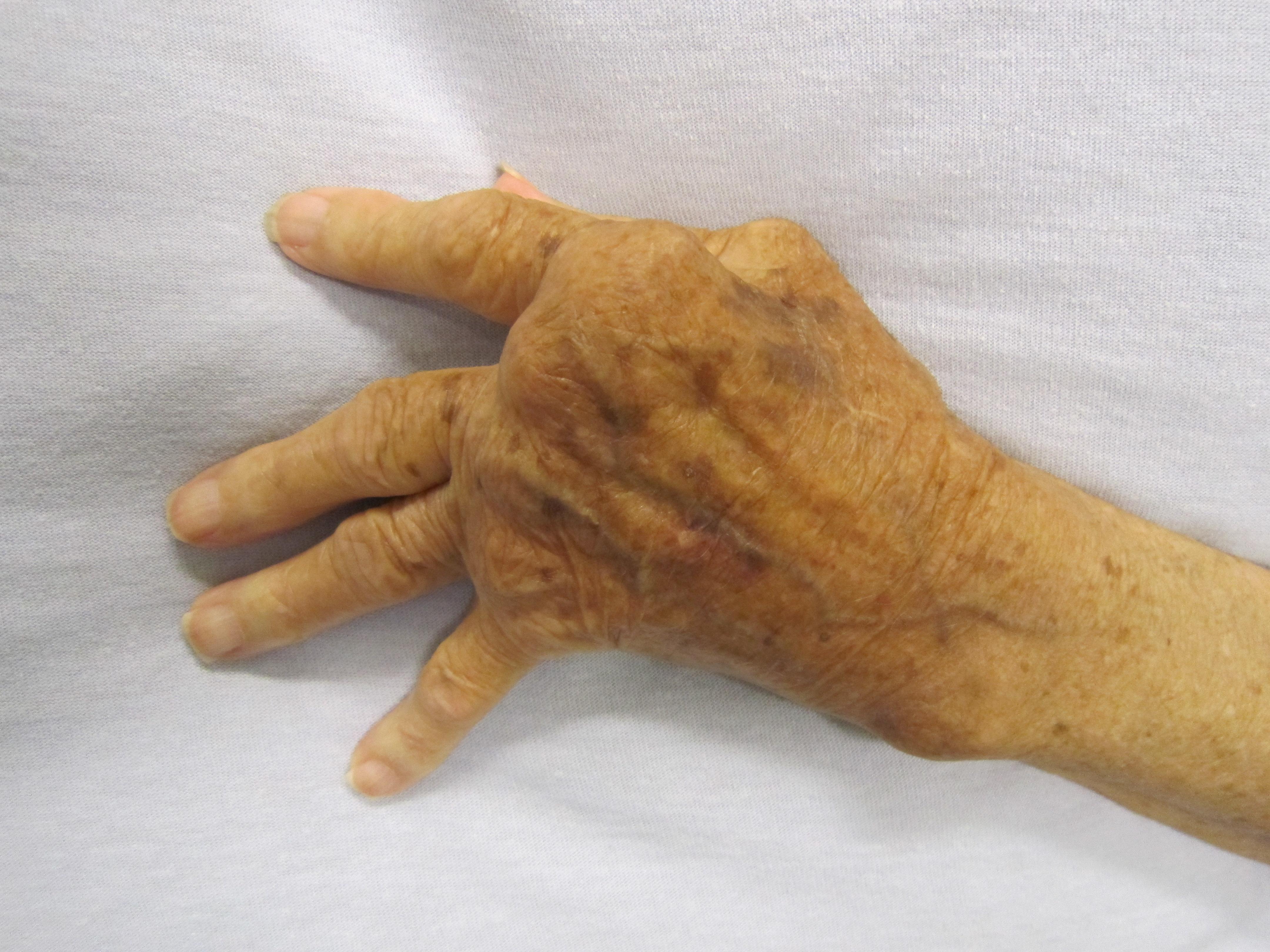 fájdalom az ujj egyik ízületében)