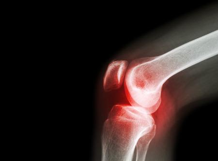 térd artrózis klinikai kezelés