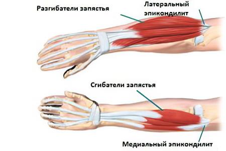 fájó könyökízület fájdalmasan összeszorítani öklét