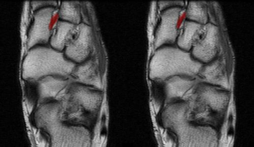 ligamentitis deltoid ligamentum boka kezelése)