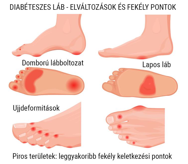 a lábak ízületeinek betegségei térdgélek