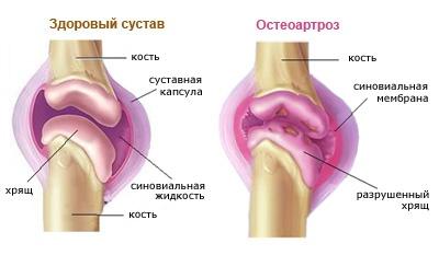 a térd artrózisának kezelése 2-3 fokkal