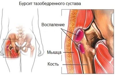 fájdalom a csípőízületekben mi ez ízületi fájdalom és vírus