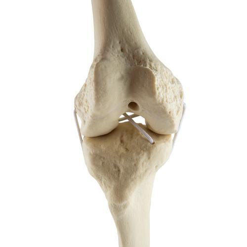 A meniscus sérülés 1. rész - ALTER-MED