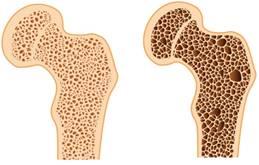 a lábízület károsodása fáj a váll és a nyak ízületei