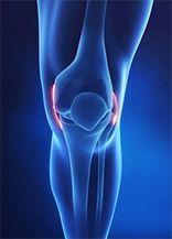arthritis arthritis kezelés külföldön)
