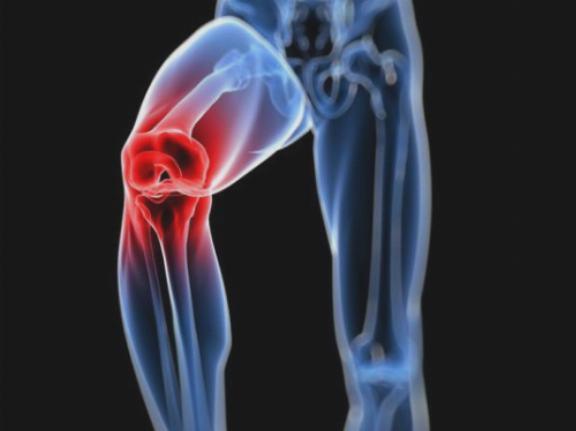 orion-5 térd artrózisának kezelésére ízületek kezelésének egyszerű módja