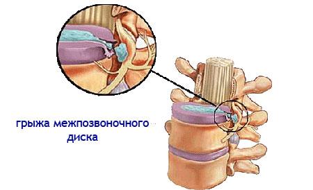 a gerinc lumbosacrális kenőcsének osteochondrosis kezelése)