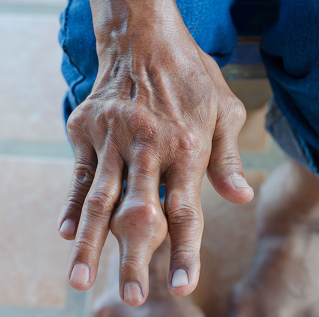 csontok kezelése az ujjak ízületein)