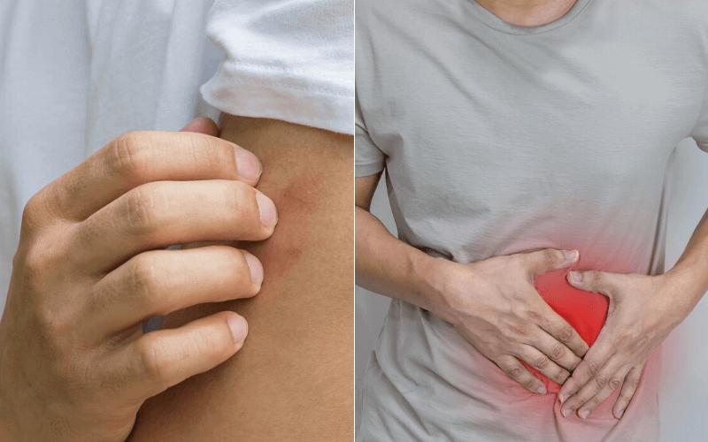 hogyan lehet helyesen diagnosztizálni az ízületi betegségeket)