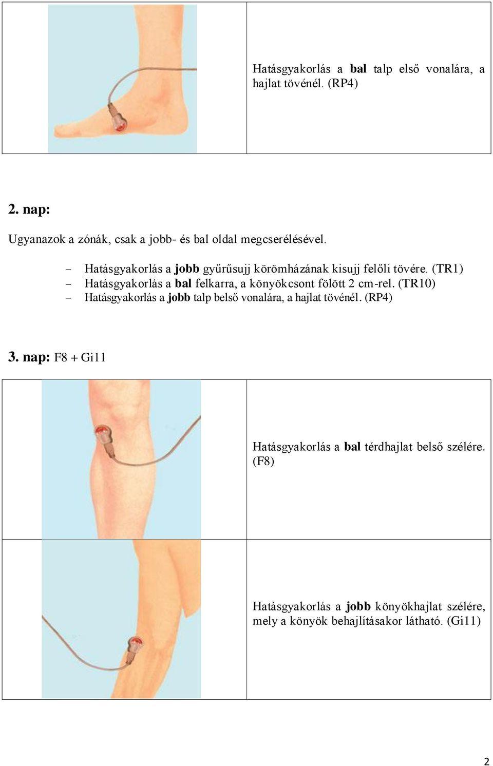 fájdalom volt a csípőízületben a bal könyökízület artrózisa 1 fok