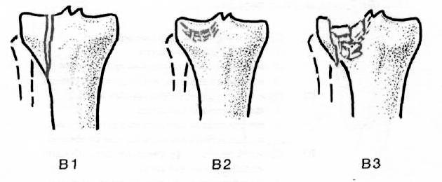 ízületi gyanta térdízület előkészítése