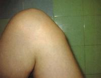 térd alatti duzzanat gyerekeknél gyulladt csuklóízület kezelés