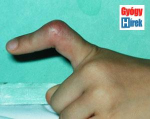 kúpok az ujjak ízületeiben fáj