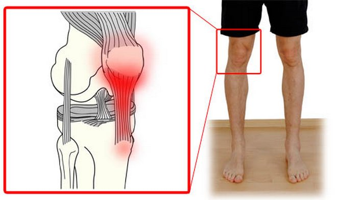 térdízület ízületi gyulladása. 1 fokos kezelés)