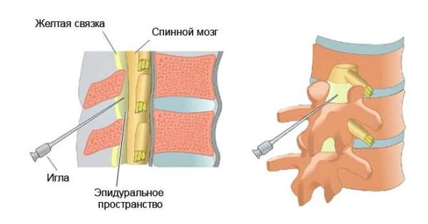 emlő osteochondrozis kenőcs kezelése)
