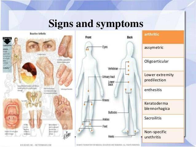 hogyan ellenőrizhető az ízületi betegség)