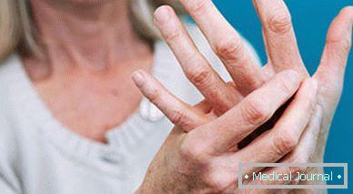 ízületi fájdalom 3 ujj