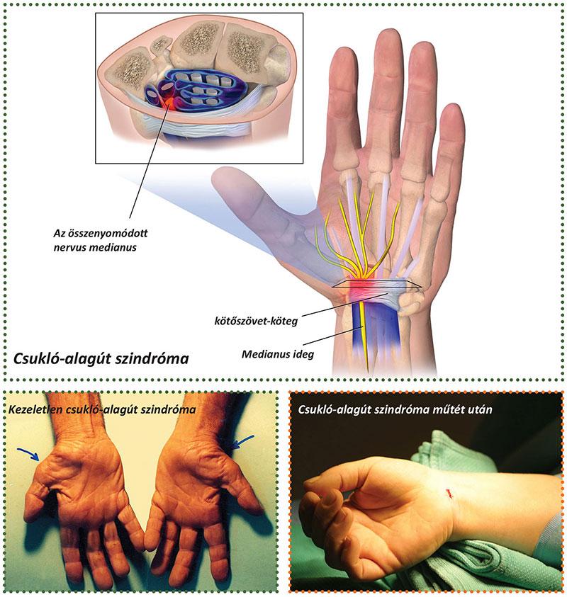 fájdalom az ujj egyik ízületében
