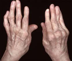 artrózis kezelése a poltavaban fizioterápia térdízületi gyulladás kezelésében