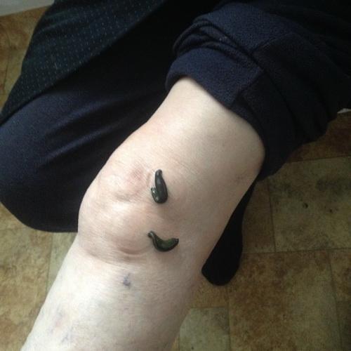 ultratone artrosis kezelés)