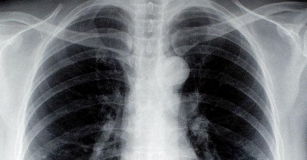 ízületi fájdalom tüdőrákkal
