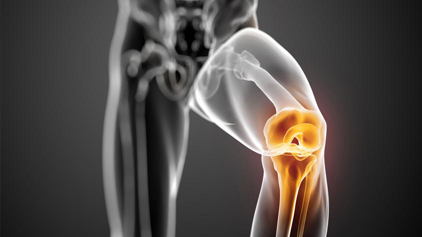 ízületi fájdalom testépítés