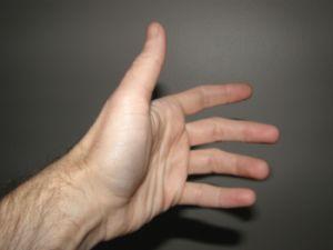ízületi gyulladások a kézben a kézben)