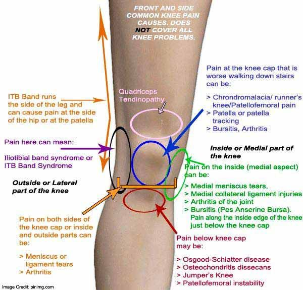 térdízületek betegségei w